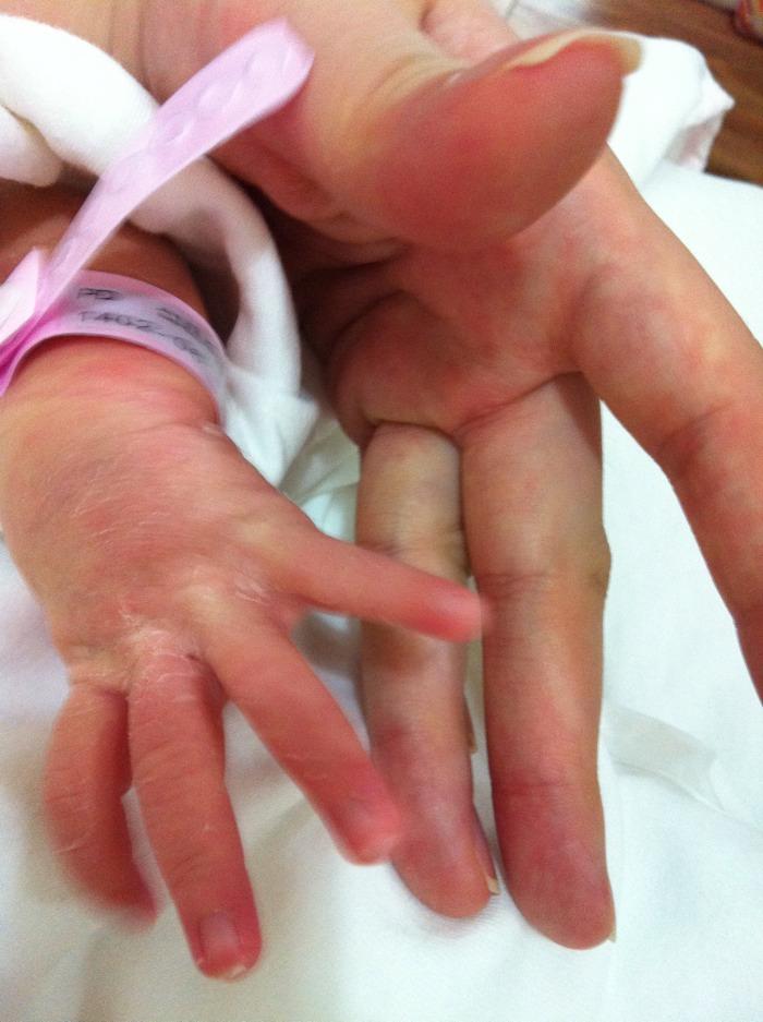 무섭게 긴 손가락