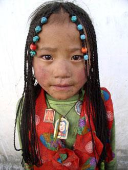 티벳고원 여행시 주의해야 할 풍토병 : TCGS