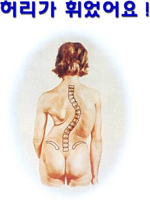 측만증-학생 척추측만증 /성장에 방해되는 척추측만증